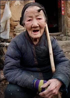 anciana china de 101 años le crece un cuerno de 6 centímetros